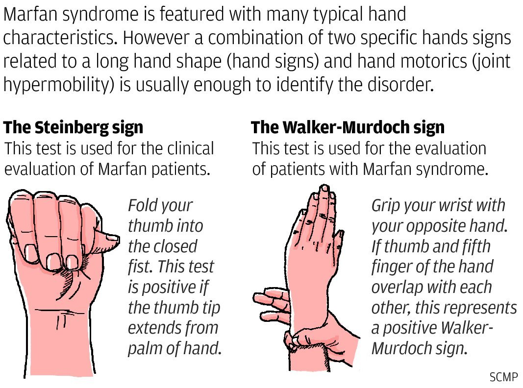 characteristics of the marfans syndrome Are there any personality traits typically associated with with marfan syndrome - are there any personality traits typically associated with with marfan syndrome not that i kno of.