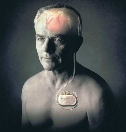 VNS Therapy (Vagus Nerve Stimulation): Deep brain ...